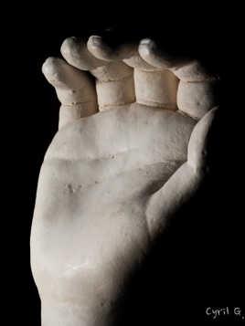 Main en plâtre